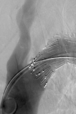 Pro-Form Expect control of your endovascular