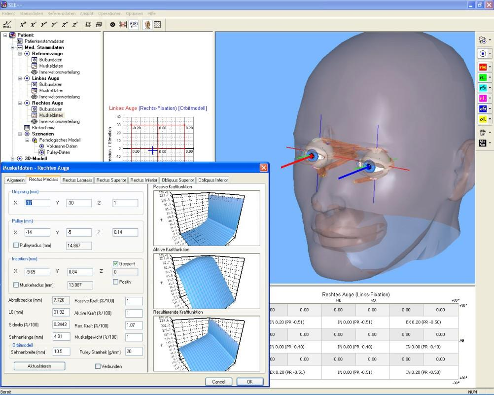 SEE++: Virtual Eye Surgery Simulation system that aims at the forecast of clinical operation results Used to