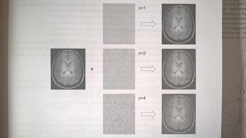 Example of effect of noise: MRI