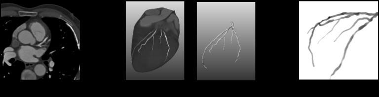 4.3 Experiments and Results 4.3.1 Imaging data We used 3D preoperative coronary CTA data with 2D intraoperative X-ray angiography of ten patients.