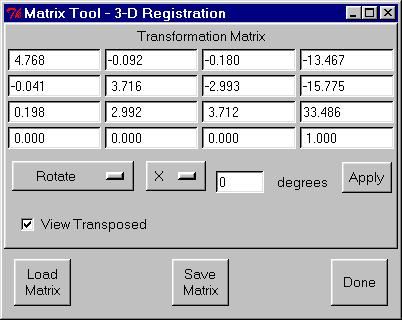 When registration is complete, the Matrix Tool window will appear with the registration transform for registering the SPECT volume images to the MRI volume image (Figure 33).