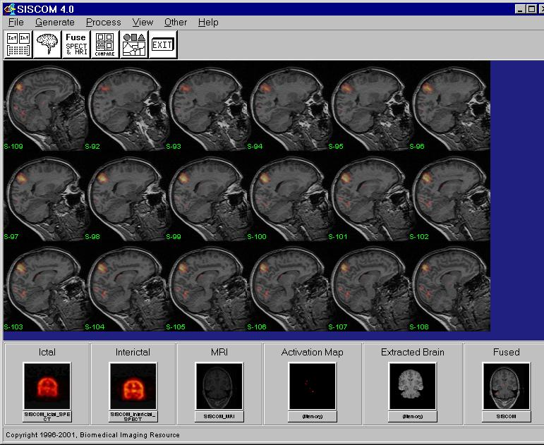 17. If the spatial registration appears correct and the fused image optimal, the Activation Map from the SPECT image can be fused with the SISCOM_MRI and output to a new 24-bit RGB volume image by