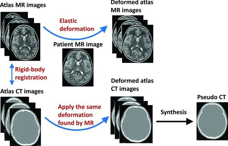registration. Thus, the estimation of HU values from MR data is a crucial step in PET-MRI and MR- RTP workflow. Several approaches were developed to solve this problem.