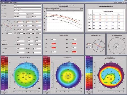 Customizable The Software Packages Refractive software package: Freely selectable reference bodies for elevation maps Overview display for refractive surgeons Corneal thickness progression analysis