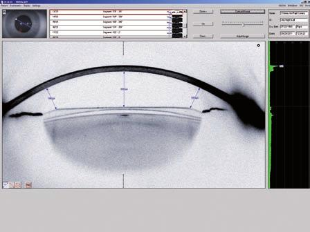 Naoyuki Maeda, MD) Detailed corneal assessment to select premium IOLs Power Distribution Display / Total Corneal Refractive Power Improved IOL calculation Orientation of toric IOls True Net corneal