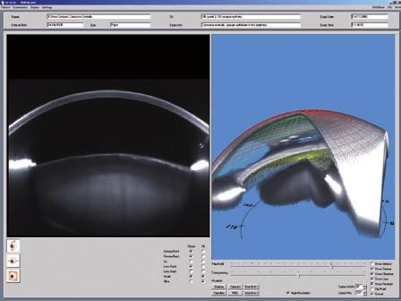 Iris Camera Anterior Segment Tomography overview image of the iris to recognize landmarks automatic determination of the corneal diameter (HWTW) determination of pupil location and shape The Pentacam