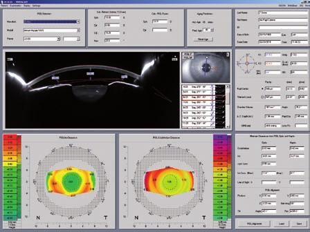 Belin/Ambrosio Enhanced Ectasia Display 3D piol Simulation Software Minimizes false positives and false negatives Detection of keratoconus in very early stages The Belin/Ambrosio Enhanced Ectasia