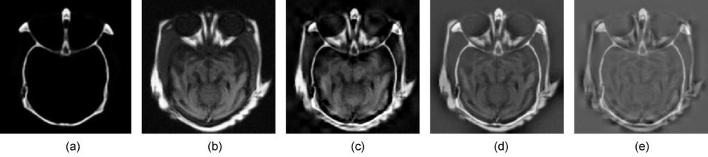 8 Image fusion with medical images (256 256 pixels): (a) image A (CT), (b) image B (MRI), (c) image fused by iterative adwti, (d) image fused by Laplacian pyramid, and (e) image fused  9 Image